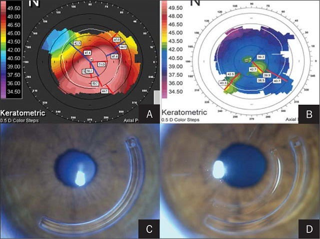 implantation only single corneal segment for keratoconus