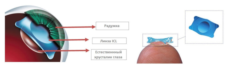 Phakic intraocular lenses posterior chamber ICL