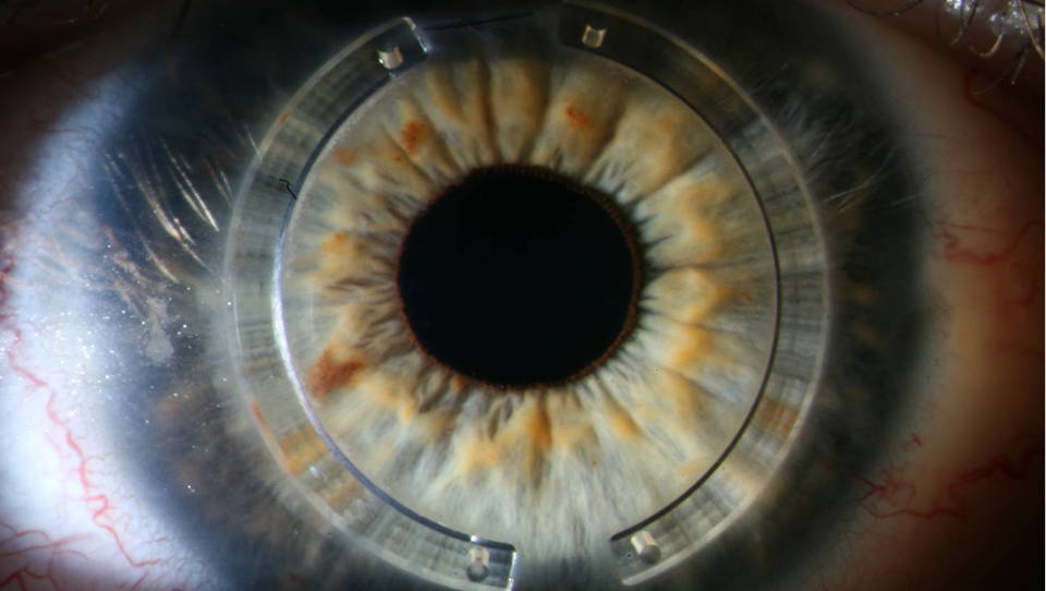 Implantation of intrastromal corneal ring segments in keratoconus