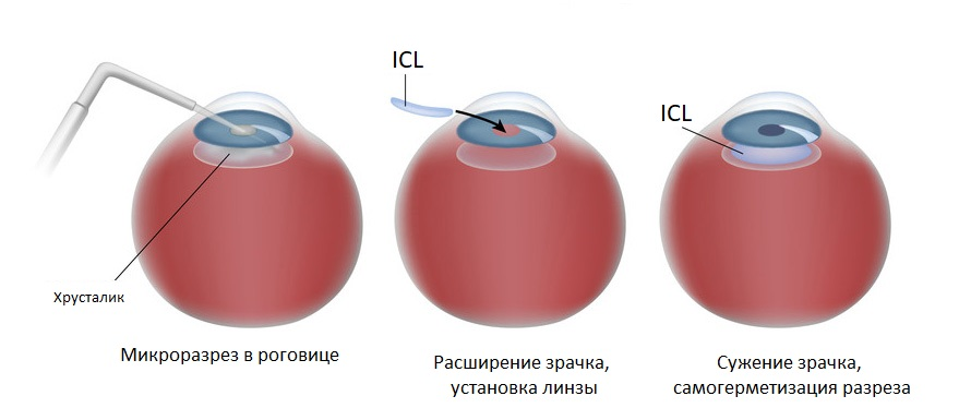 Prices and reviews after installation of ICL-implantable intraocular lens from collamer