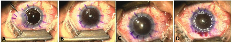 Penetrating keratoplasty surgery for keratoconus cost